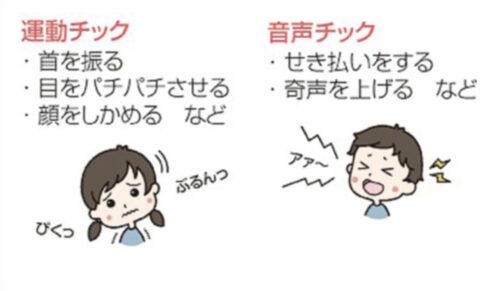 ジュノン(池亀樹音)はチック症で顔痙攣している?瞬き多い原因を調査!
