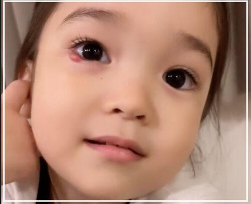 紅蘭の娘の目の画像が可哀想?霰粒腫の病気や治療についても調査!
